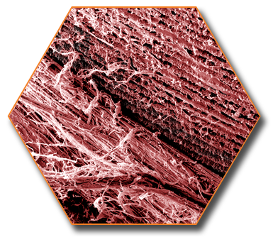 investigación de Laser-Lok
