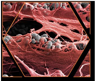 microscanalature Laser-Lok