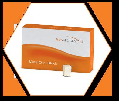 Alloinnesto MinerOss Block