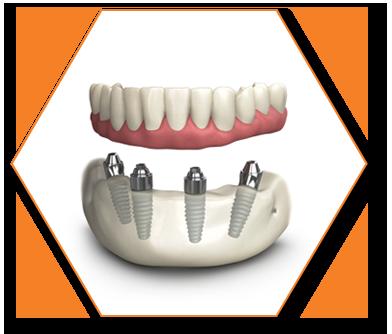 TeethXrpess