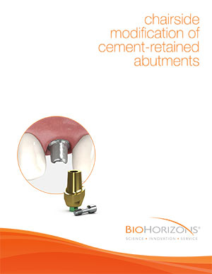 Modifikation zementierter Abutments im Behandlungsstuhl