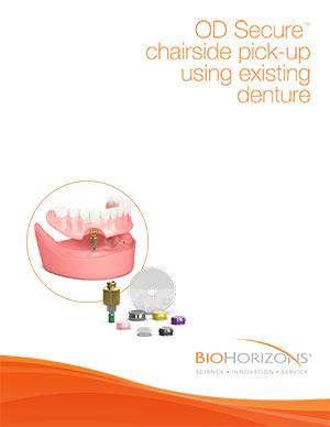 OD Secure-Abdruck im Behandlungsstuhl mit bestehenden Zahnersatzmodulen