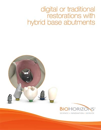 Digital or traditional restorations with hybrid base abutments