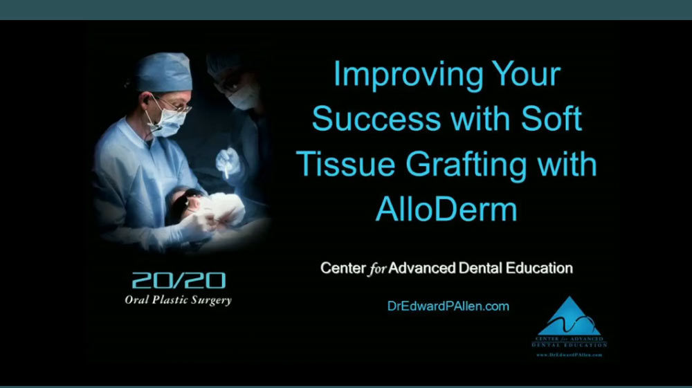 Improve Your Success with Soft Tissue Grafting Using Acellular Dermal Matrix