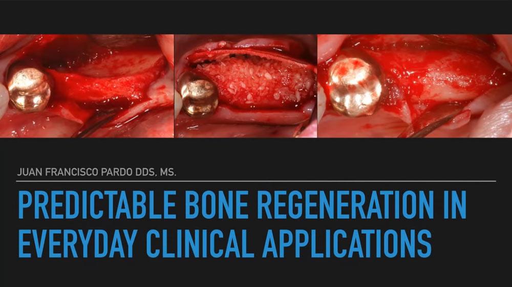 Rigenerazione ossea prevedibile nelle applicazioni cliniche quotidiane
