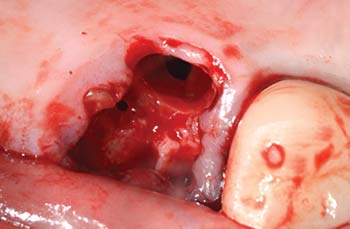 Mem-Lok Pericardium case image 1