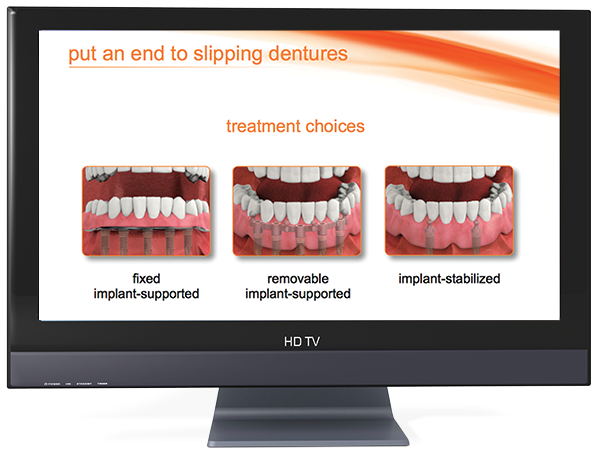 dental implant overview video loop