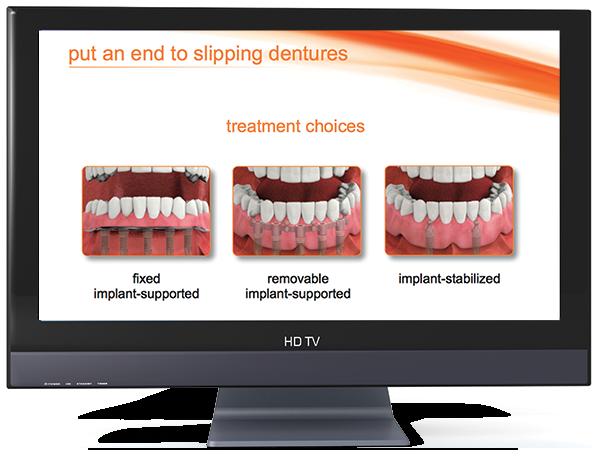 dental implant overview video loop