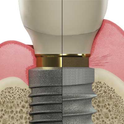 Laser-Lok vs standard implant